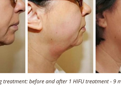 What is the best non-surgical facelift and how does it work?