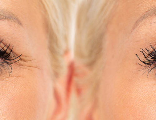 Reduce fine lines and wrinkles with our non-invasive RF microneedling procedure