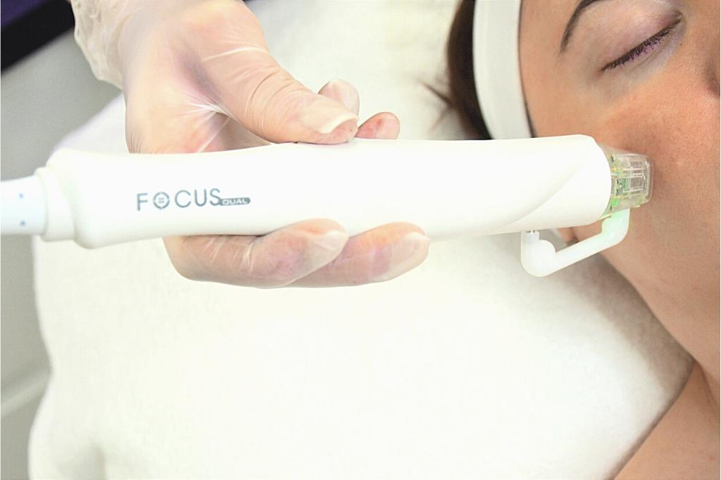 Focus Dual RF Microneedling