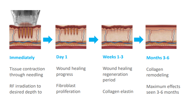 RF microneedling process