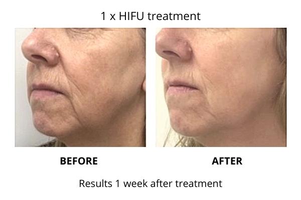 HIFU anti ageing skin treatment results