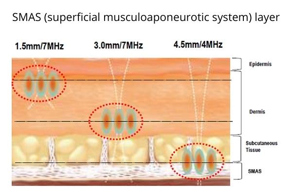 HIFU treatment SMAS skin layers